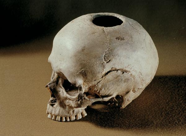 Trepaneret kranium fra Naes DO 9650 1200  nat mus