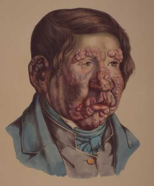 c  Johan Ludvi Losting  1847  Bymuseet i Bergen 01
